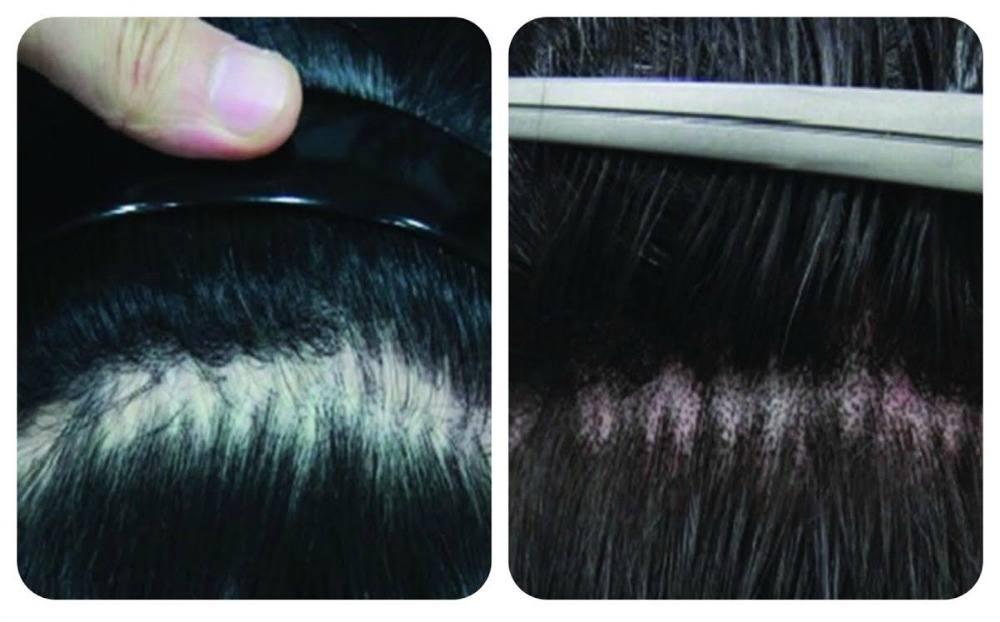 thinning_hair