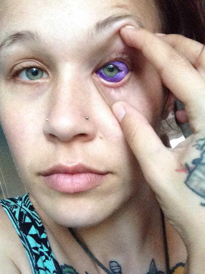 Canadian Woman Could Go Blind After Getting Eyeball