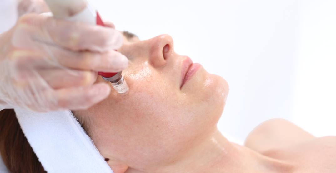 It's time to start talking about acne scar treatments (CONTEST)
