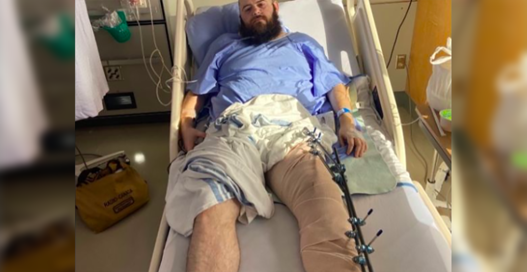 "Vancouver man's leg broken after standing up to ""anti-gay bullies"" in West End"