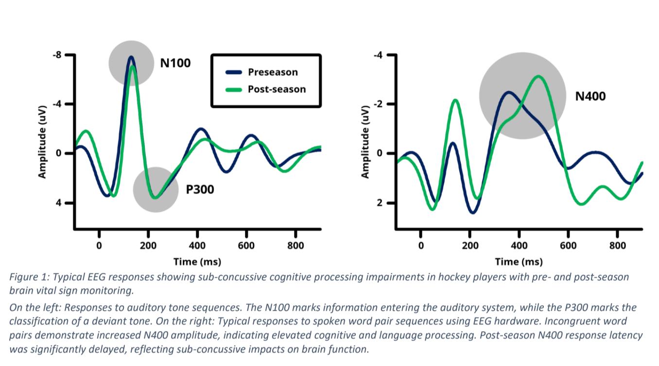 NeuroCatch concussion