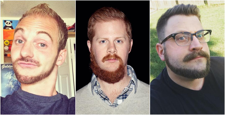 "Bizarre ""monkey tail beard"" trend takes over the Internet (PHOTOS)"