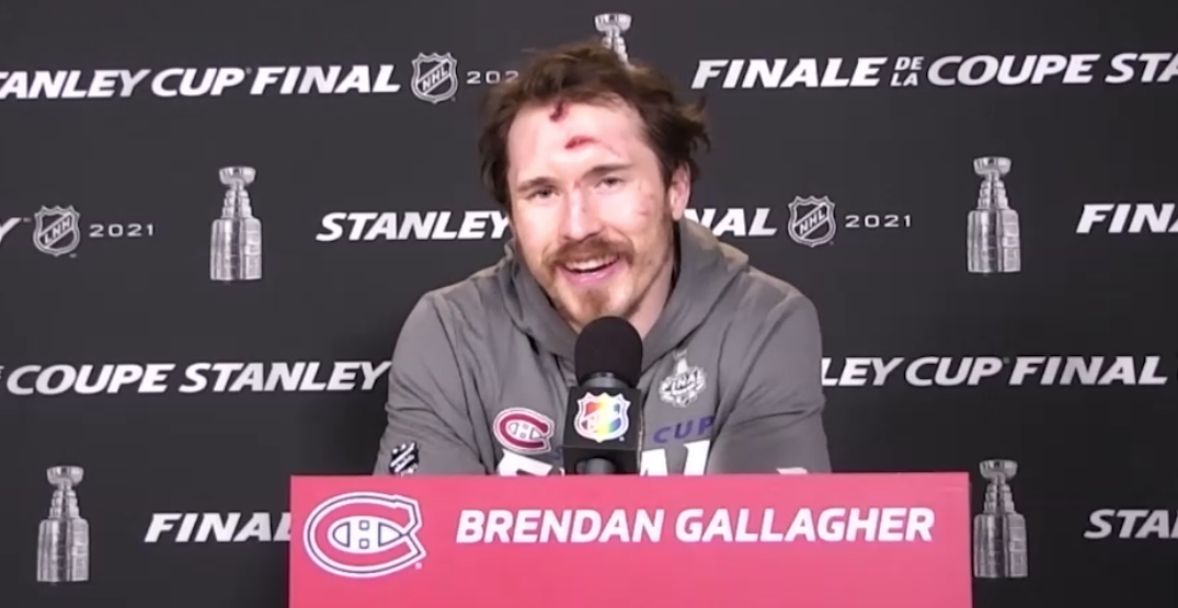 Canadiens answer questions about Brendan Gallagher's beat-up face