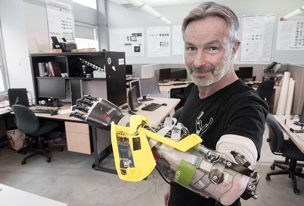 Danny Letain will be competing to do everyday tasks with the new bionic arm (SFU)